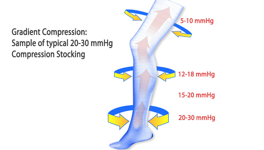 diagram of compression stockings